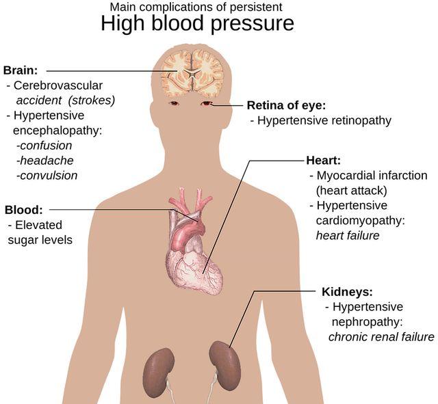 visok-krvni-pritisak