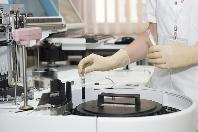 holesterol-laboratorija1